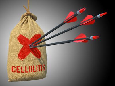 anti-cellulite-a-la-menopause