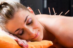acupuncture-et-perte-de-poids