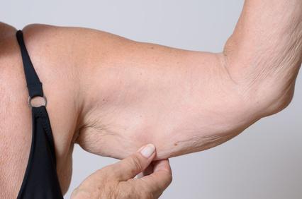 retendre la peau des bras