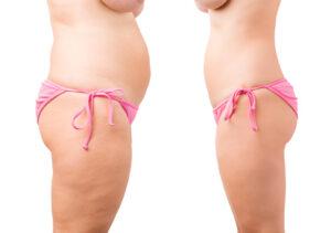 les ventouses anti-cellulite