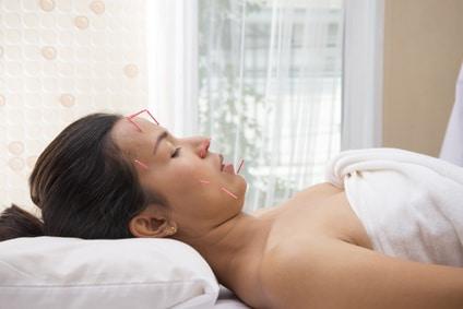acupuncture et perte de poids